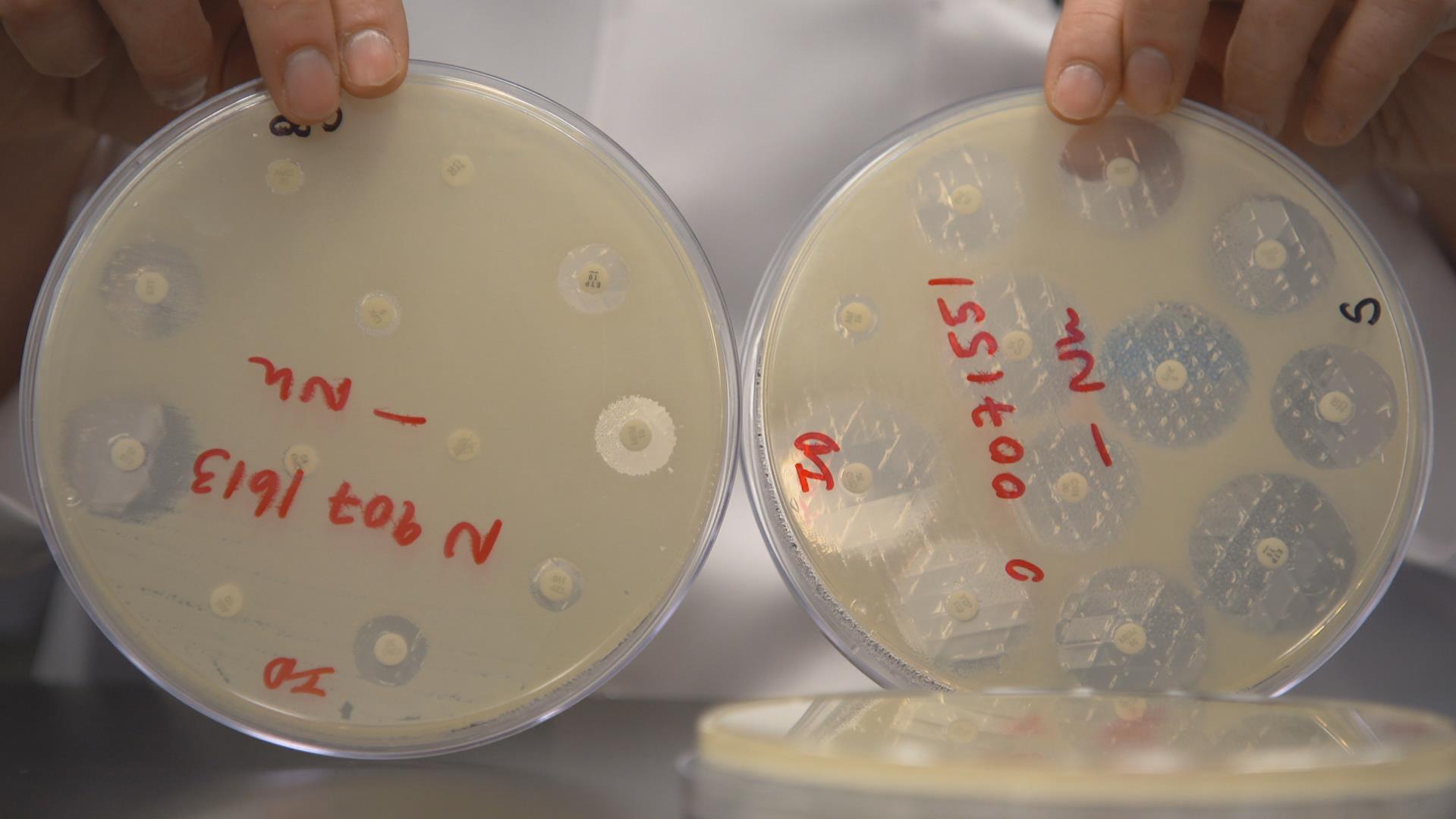 Dans ces boîtes de Petri, chacune des petites pastilles est imbibée d'un antibiotique différent. Le film blanchâtre qui recouvre le plat de Petri est un tapis de bactéries. À droite, une culture de bactérie typique des années 80, sensible à presque tous les antibiotiques. Elle ne parvient pas à se multiplier autour de la majorité des pastilles : les médecins ont beaucoup de choix thérapeutiques. À gauche, une culture d'EPC, résistante à presque tous les antibiotiques.