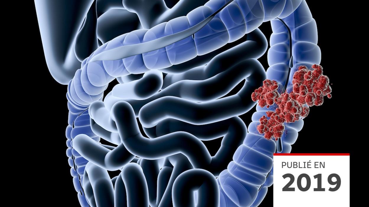 cancer colon jeune adulte cancer de prostata estadio 4