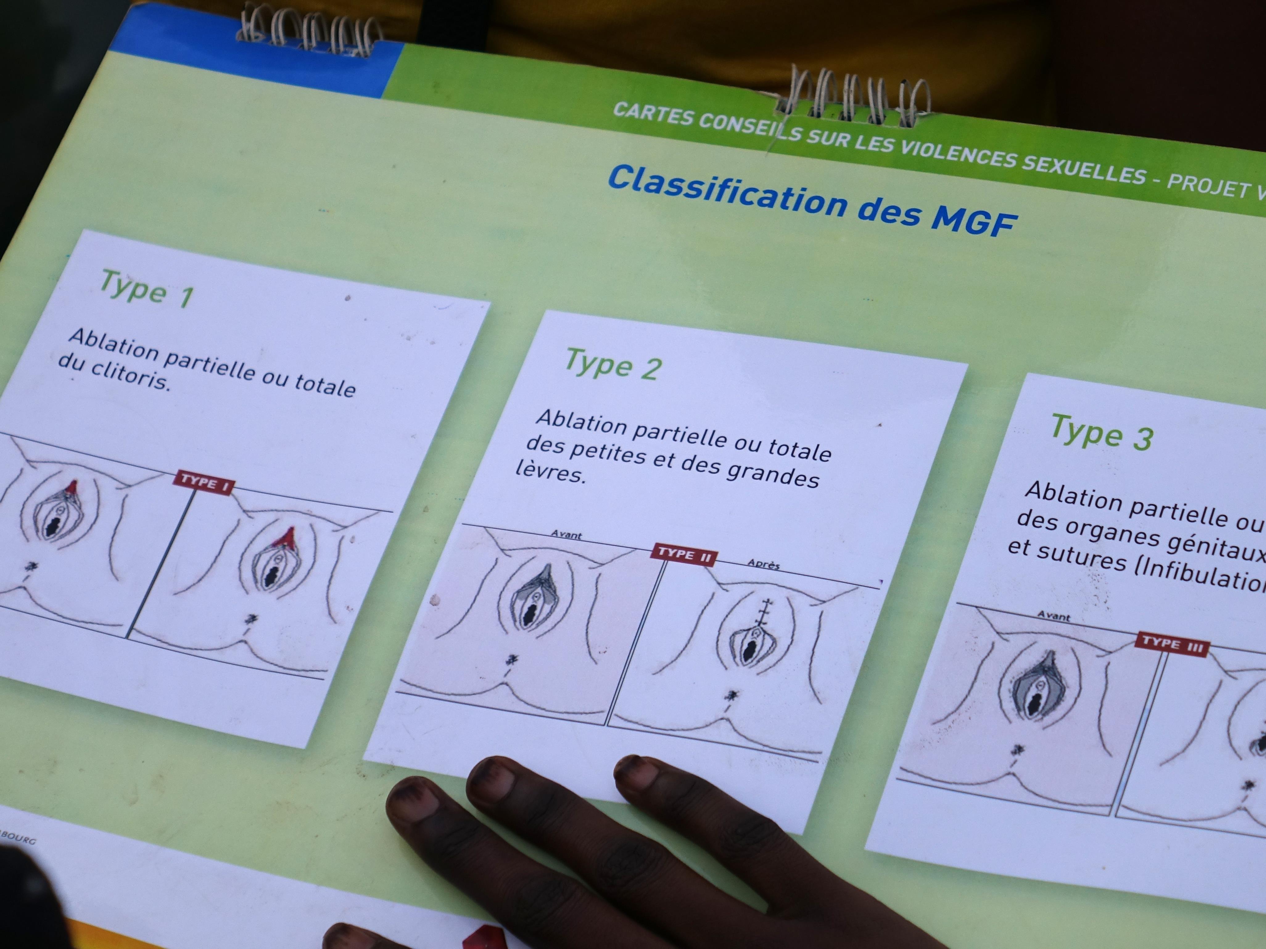 Des dessins montrant les différents types d'excision