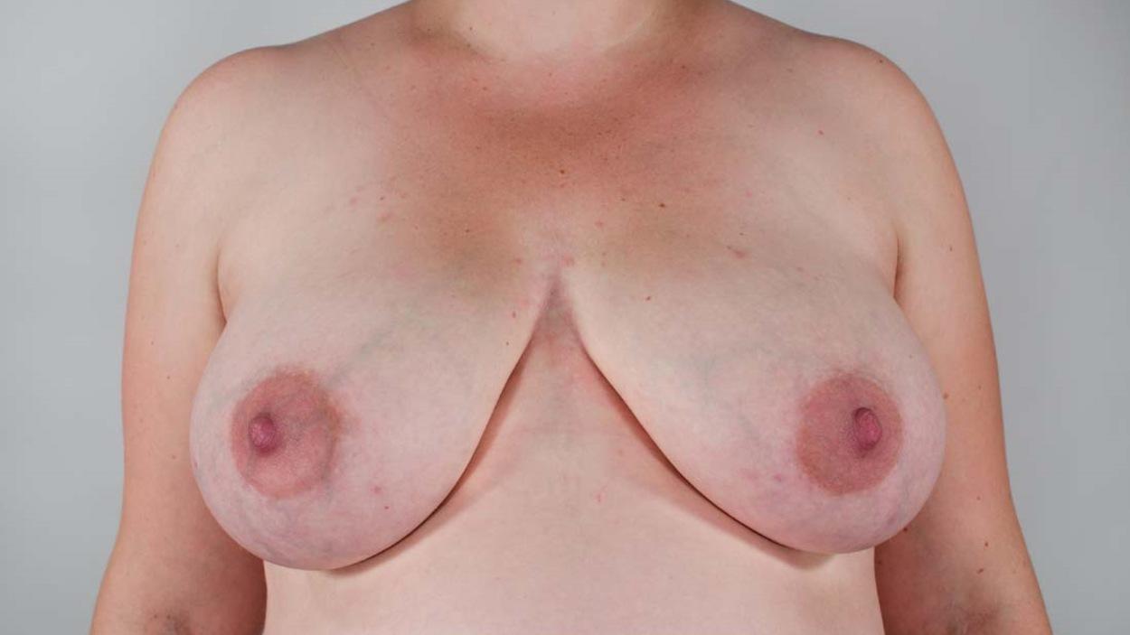 Des seins de femme