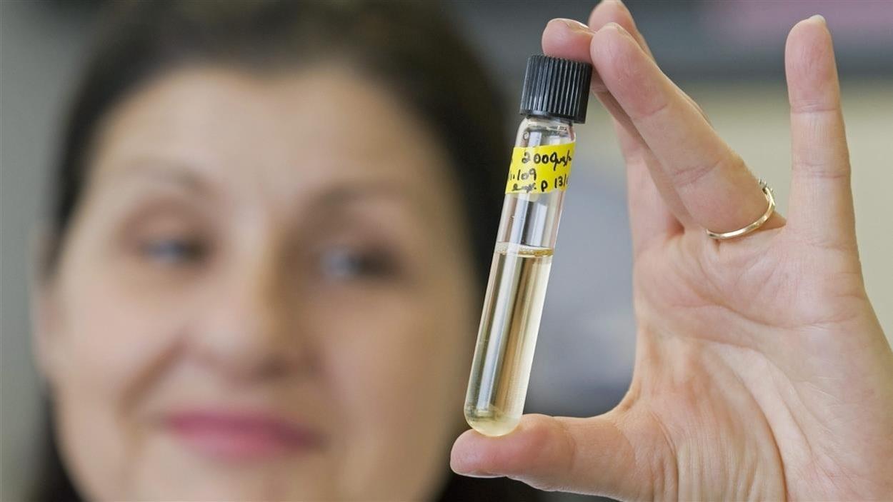 Une femme tient dans sa main un échantillon d'urine.
