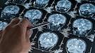 Les commotions cérébrales:quand le sport laisse des séquelles