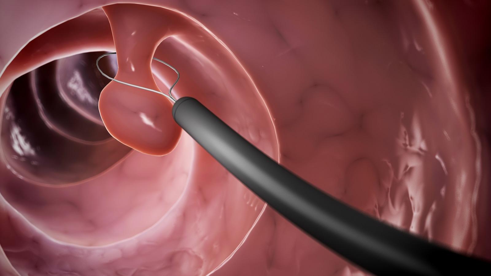 Cette infographie montre un polype situé dans le côlon et un appareil avec une sangle permettant de retirer le polype.
