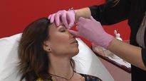 Le botox au cœur d'une bataille entre des infirmières et le Collège des médecins