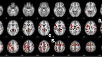 Des images d'un cerveau d'un des participants à une étude sur la schizophrénie