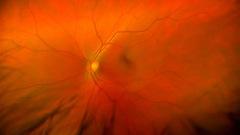 Des cellules souches pour réparer l'œil