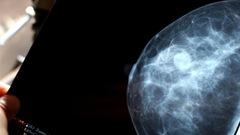 Les cas de cancer encore en hausse au pays