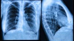 1989 : la découverte du gène responsable de la fibrose kystique