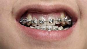 Des broches orthodontiques.