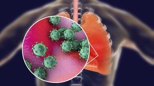 Illustration conceptuelle montrant un coronavirus dans des poumons.