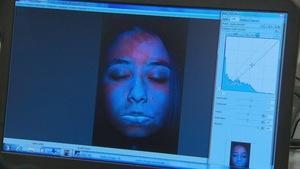 Un appareil photo révèle les dommages causés par les rayons UV