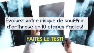 Un médecin tient entre ses mains des photographies par rayons X.