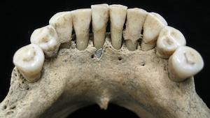 Dentition du bas d'un squelette.