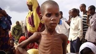 La malnutrition fait des ravages chez les jeunes enfants somaliens.