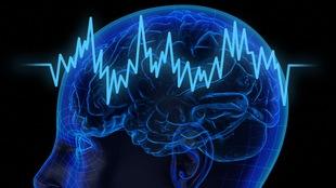La plasticité de notre cerveau