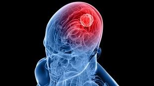Une radiographie montrant une tumeur du cerveau.