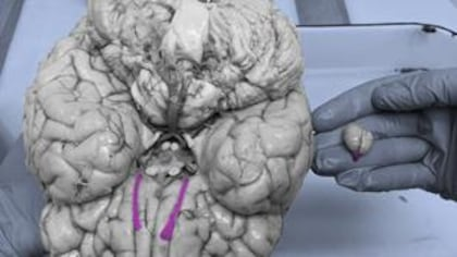 Cerveaux: humain versus souris
