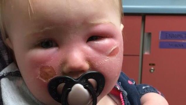 Enfant présentant des cloques au visage