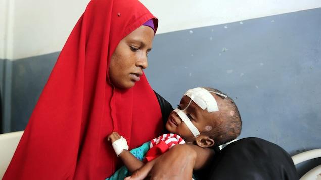 Une Somalienne tient son enfant sous-alimenté dans un hôpital de Mogadiscio.