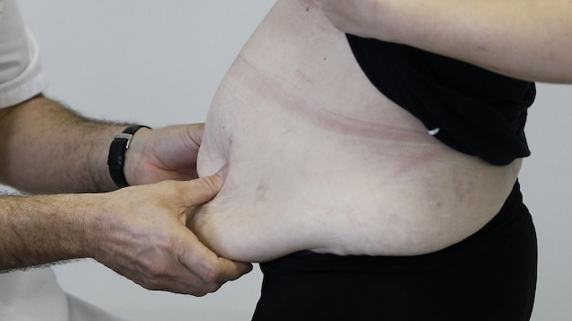 Un homme médecin tient le tour de taille d'une patiente