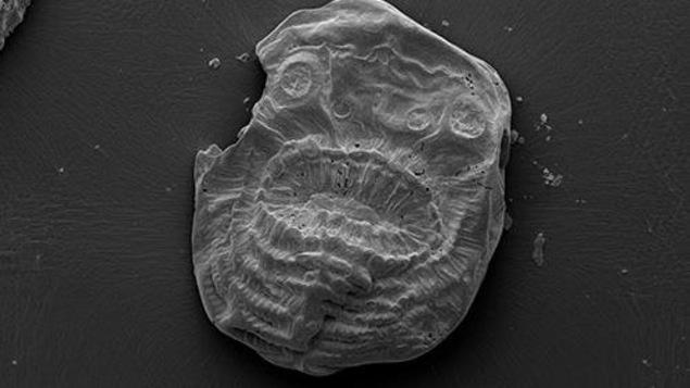 Voici le Saccorhytus, votre ancêtre