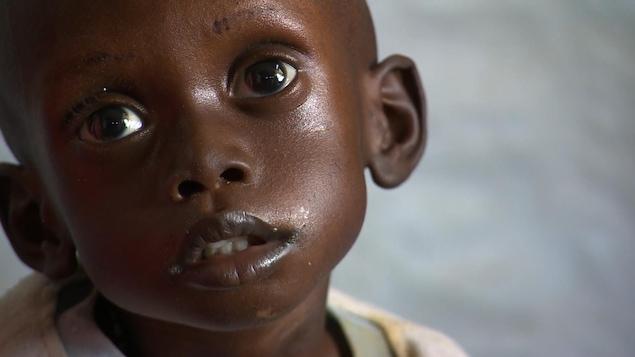 Un petit garçon hospitalisé à Djouba, au Soudan du Sud