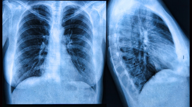 La fibrose kystique peut être dépistée grâce à la radiographie.