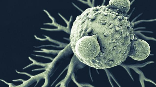 Des cellules cancéreuses