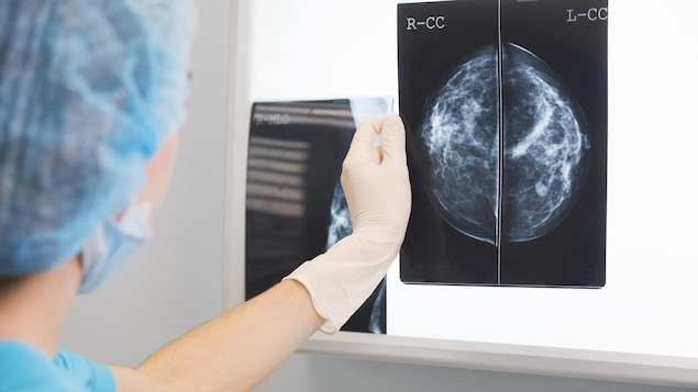 Une médecin tient une mammographie devant un écran lumineux.