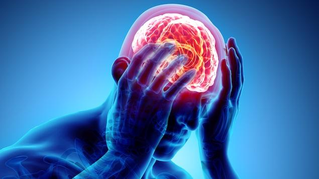 Illustration d'une personne éprouvant des douleurs à la tête ou de la dépression