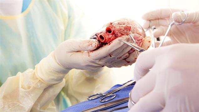 Dans une salle d'opération des mains gantées tiennent un coeur humain.