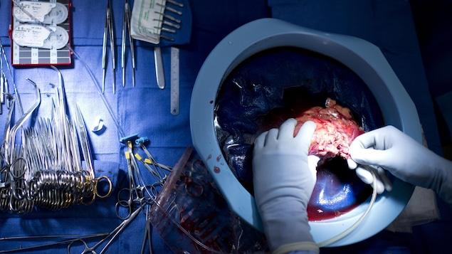 Un médecin insère un tube dans un rein.