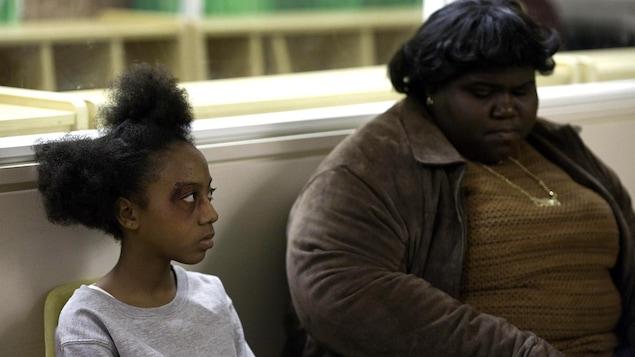 Une petite fille avec le visage tuméfié assise à côté d'une jeune femme obèse.