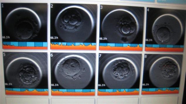 Des embryons vus au microscope